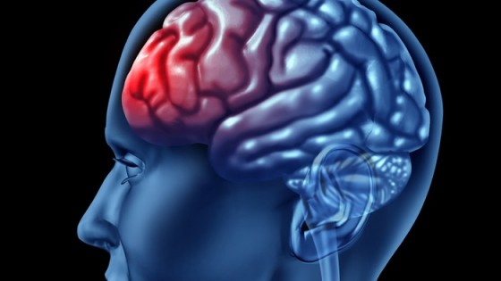 Why a Traumatic Brain Injury Can Cause a Marriage to Collapse