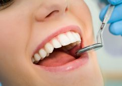 Reasons to Choose With Dental Implants