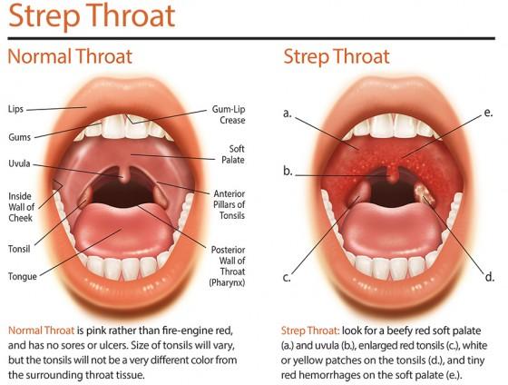 Strep Throat In Children And Infants