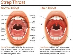 strep-throat